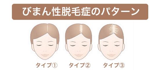 びまん性脱毛症の症状