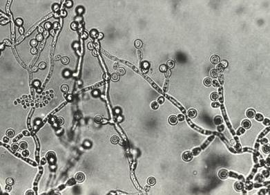 カンジダ症の病原菌