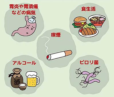 胃潰瘍の原因